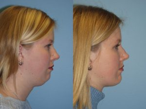 face lipo dr ackerman