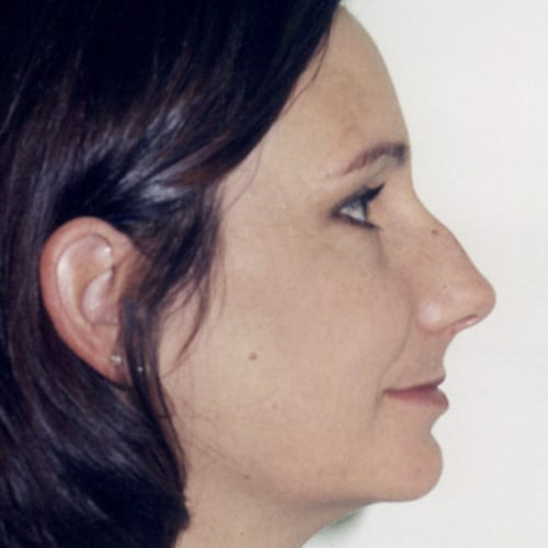 Rhinoplasty Patient Before