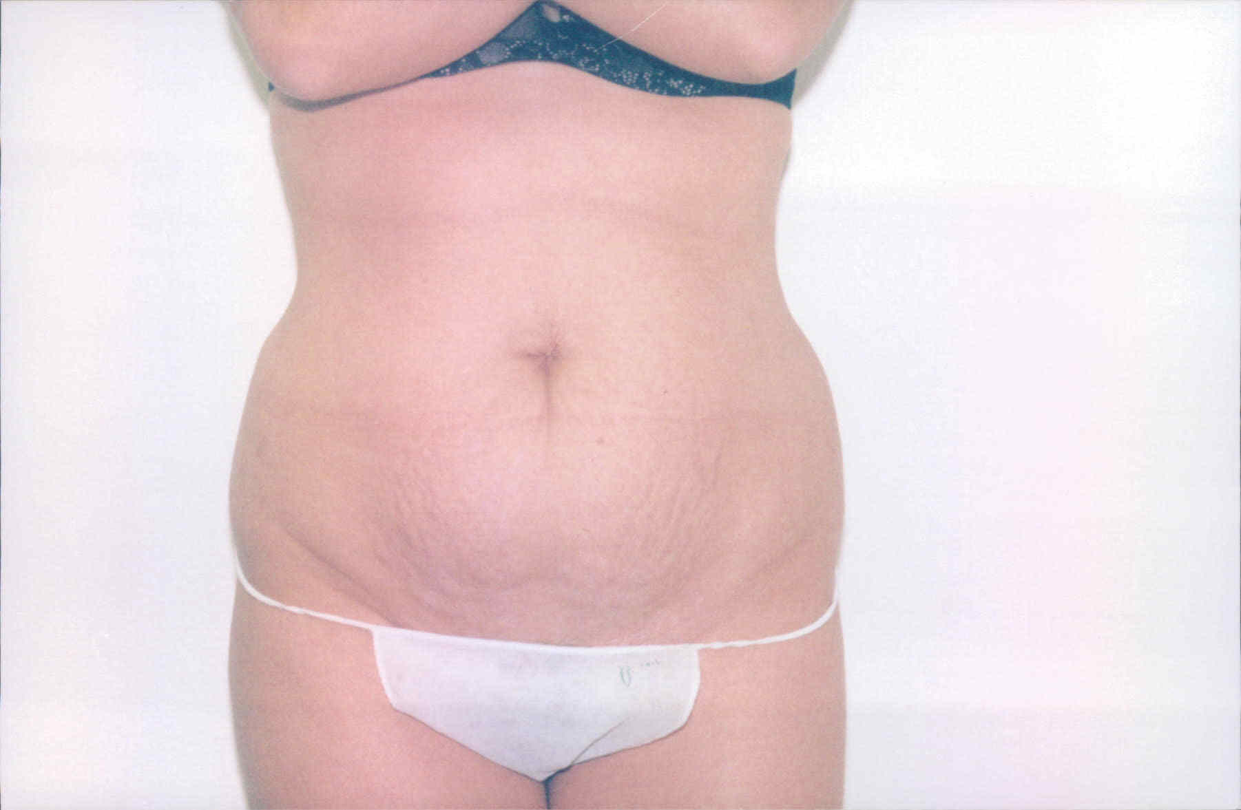 tummy tuck before 1a