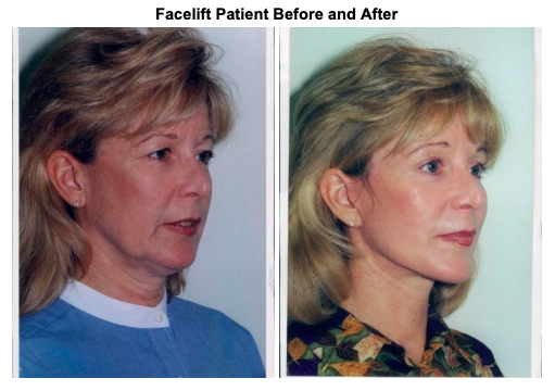 female-facelift1-00287-375x500-img-blog