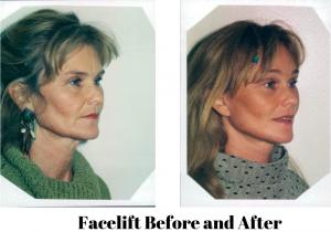 img-blog-female-facelift-1-BA