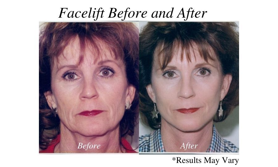 Before and after imaging showing the facelift results of a female patient performed by Dr. Ackerman in Newport Beach, California.