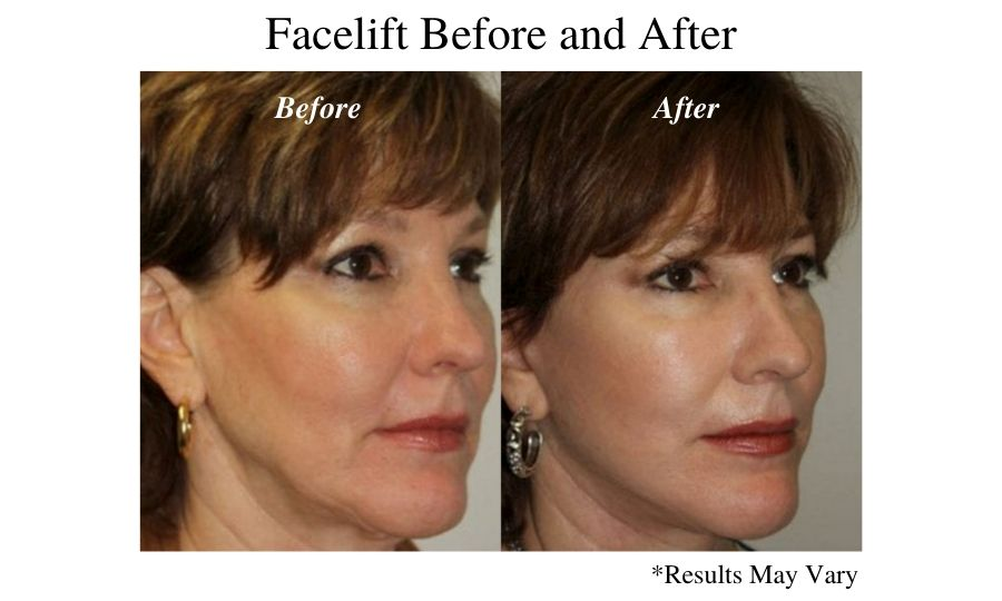 facelift before and after of a woman