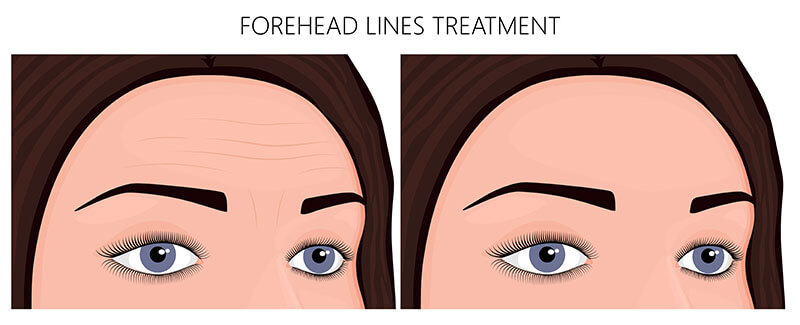 Forehead lines and wrinkles can be addressed through BOTOX cosmetic and other injectable treatments.